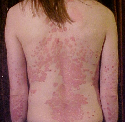 Psoriasis And Heredity